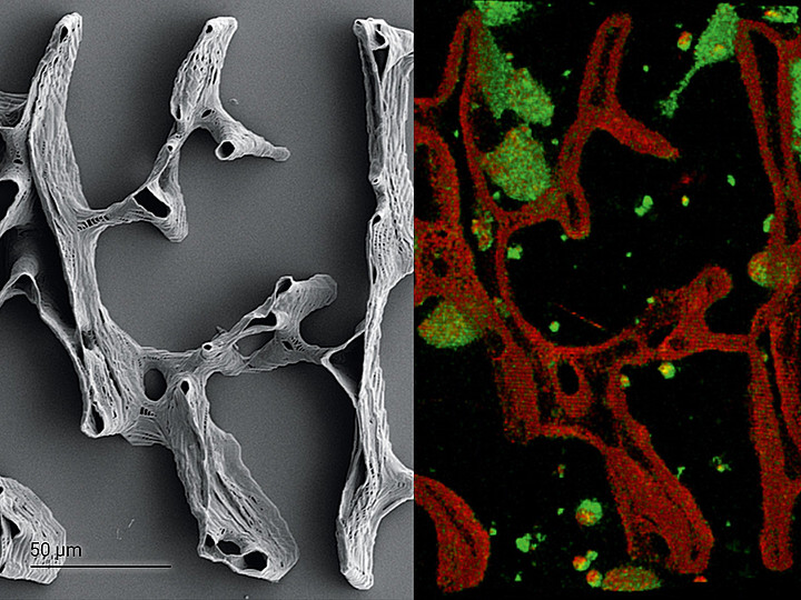 High-fidelity replication of a human trabecular bone structure from a 3D µ-CT scan.